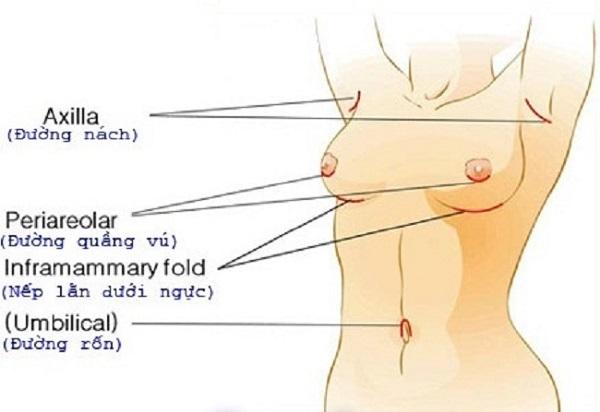 Nâng ngực nên chọn đường mổ nào?