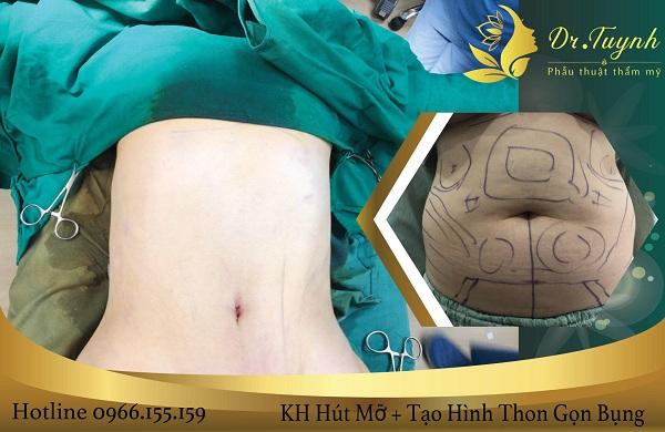 Phẫu thuật tạo hình thành bụng tối thiểu (mini)