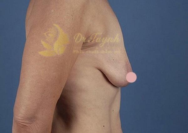 Treo vú sa trễ khác gì so với phẫu thuật nâng ngực?