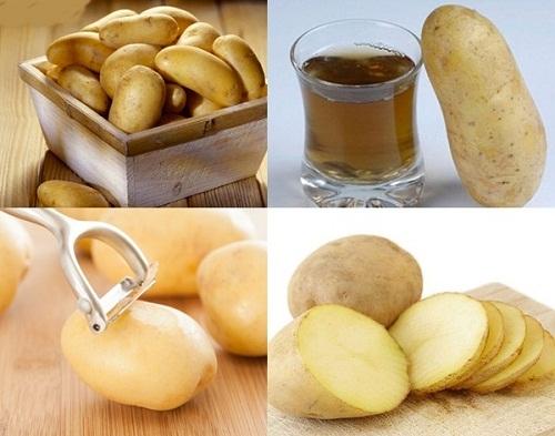 1. Cách trị thâm nách nhanh nhất với nguyên liệu từ khoai tây, bạn đã thử?