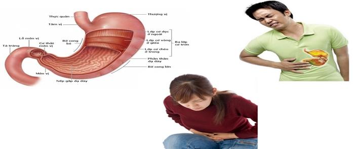 Bệnh đau dạ dày với những cơn đau dữ dội