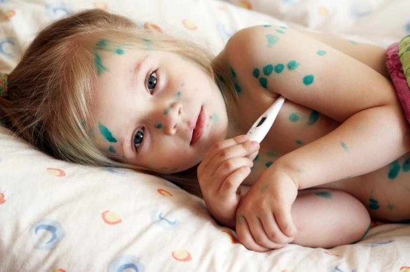 Bệnh thủy đậu rất dễ lây lan ở trẻ nhỏ