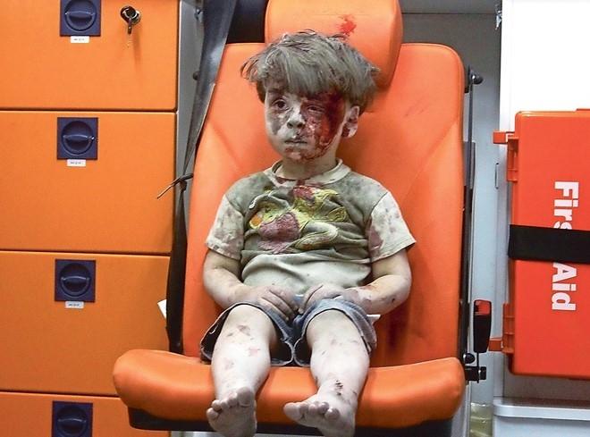 Bức ảnh bé trai 5 tuổi người Syria