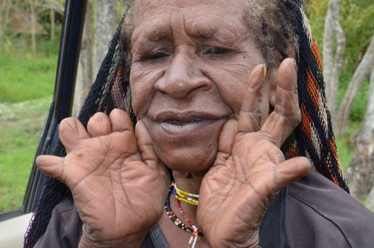 Cắt cụt ngón tay là một trong những tập tục kỳ dị nhất trên thế giới