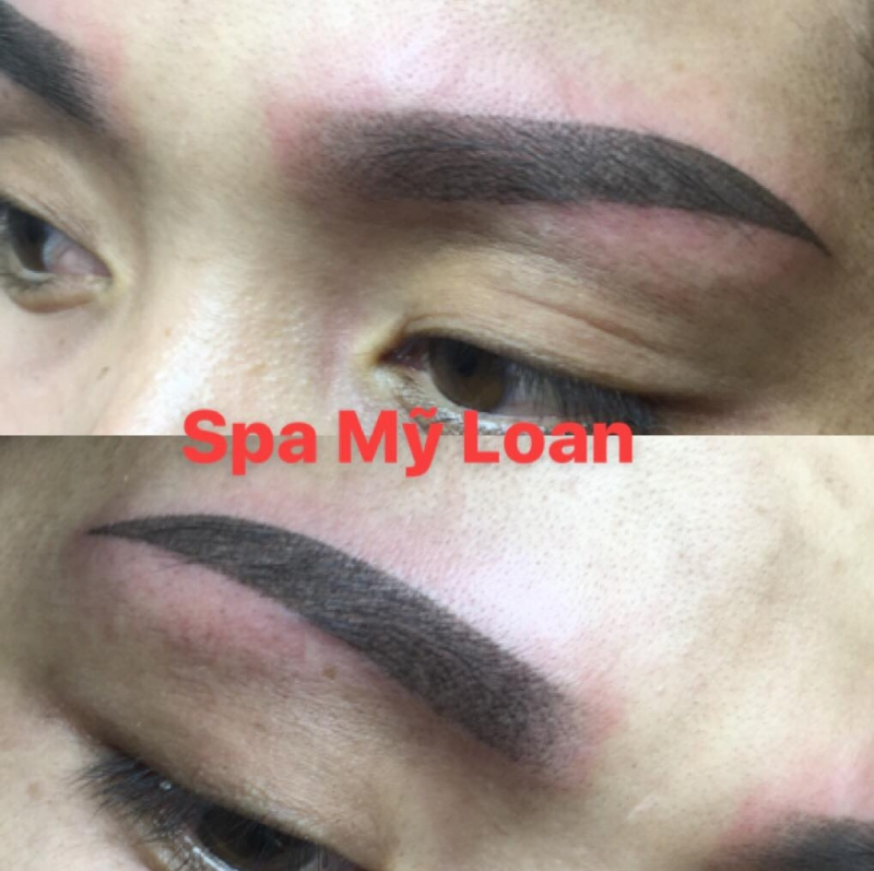 Spa Mỹ Loan