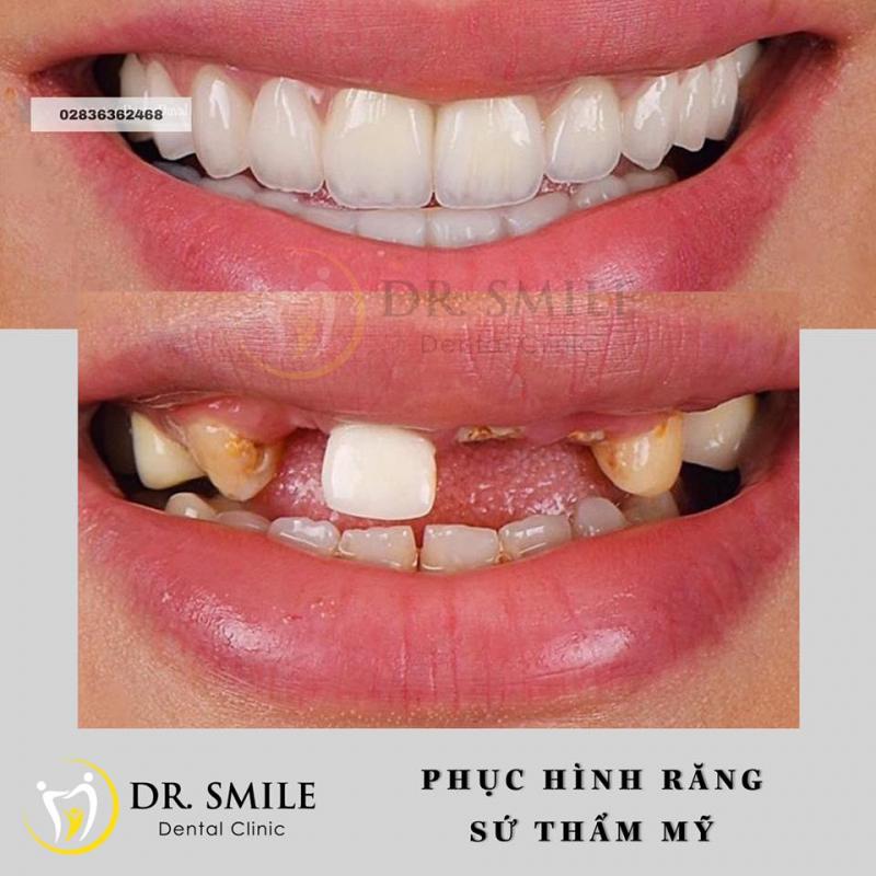 Nha khoa Dr.Smile