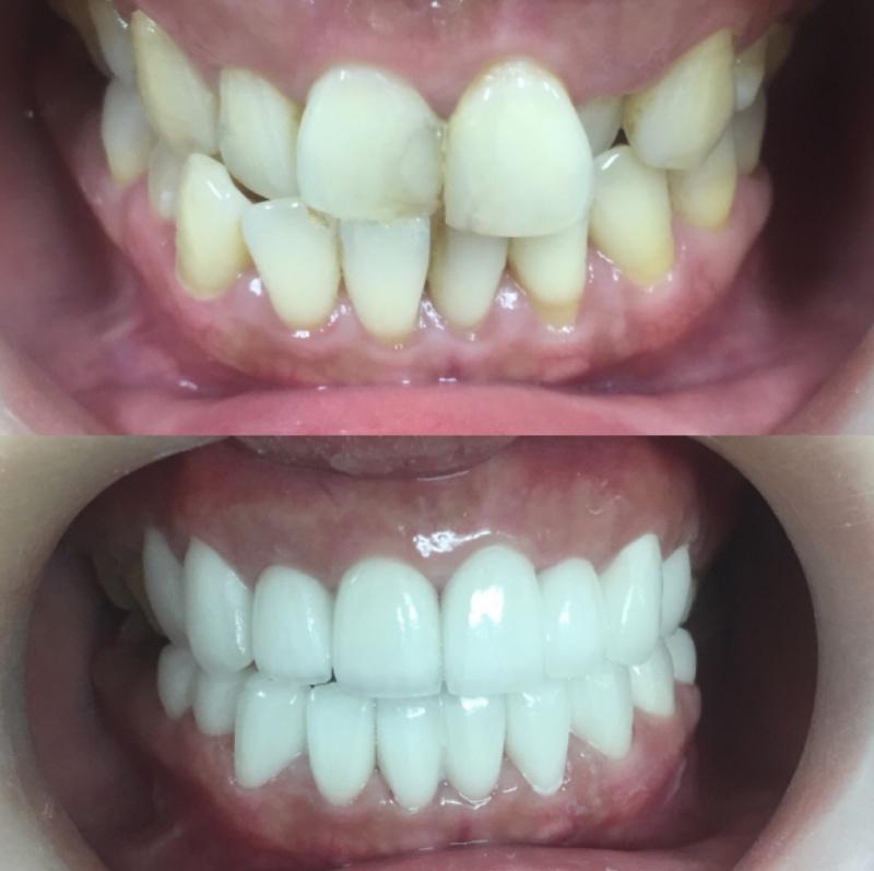 Nha Khoa Răng Sứ -  Porcelain Dentistry