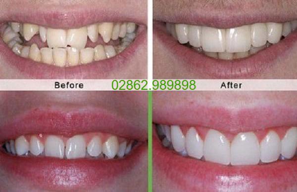 Nha khoa Sài Gòn Dental